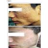 照片前后对比:雀斑、黄褐斑、真皮斑、毛孔粗大、红血丝一次解决