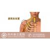 康立骨科专家谈谈关于肩周炎的那些事