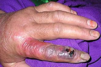 黑龙江炭疽疫情 皮肤炭疽病症状图片
