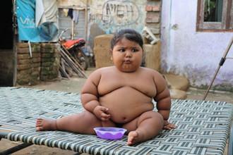 印度女婴每天48顿饭 16个月重25公斤