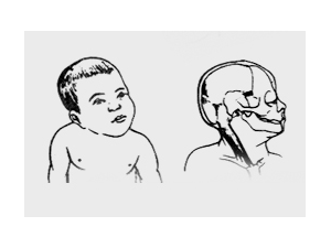 宝宝歪脖子怎么治疗?