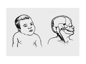 先天性肌性斜颈?这5种治疗手段可以缓解症状