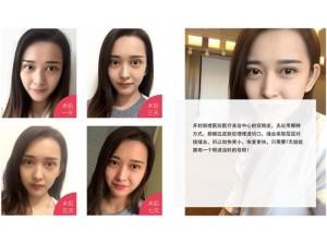 郑州韩式无痕双眼皮哪个医院正规